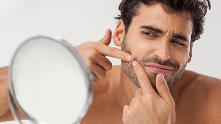 acne-tardia-homens