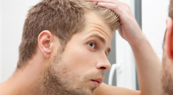 como disfarçar careca