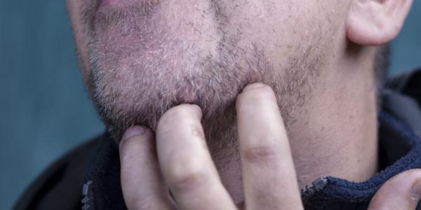 barba irritada quando cresce