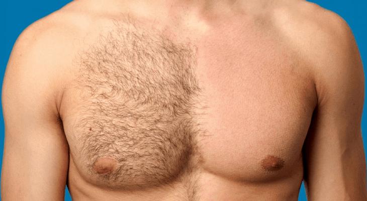 produto-depilacao-masculina