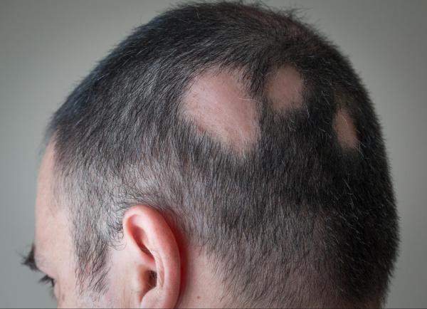 Homem com alopecia