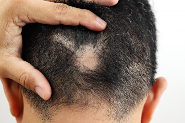 Homem com alopecia areata