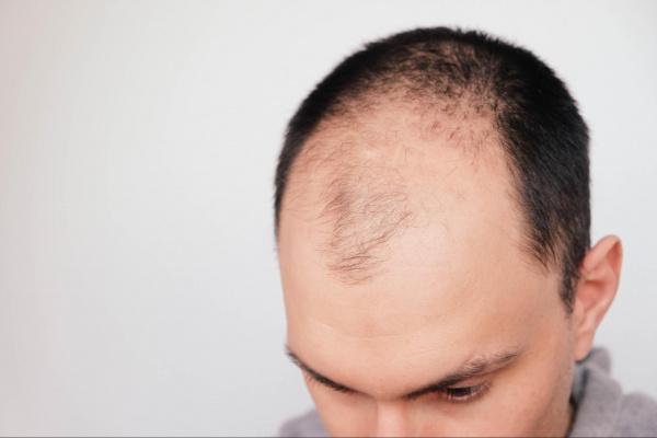 Homem calvo, exemplo de alopecia